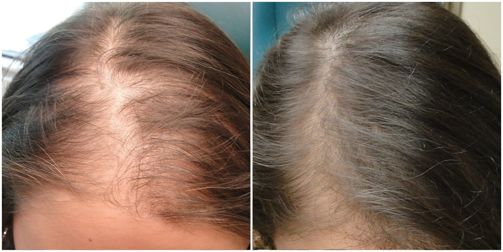 scalp microneedling results