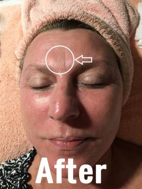 AFTER MICRONEEDLING TREATMENT