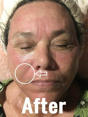 FINE LINES AFTER TREATMENT