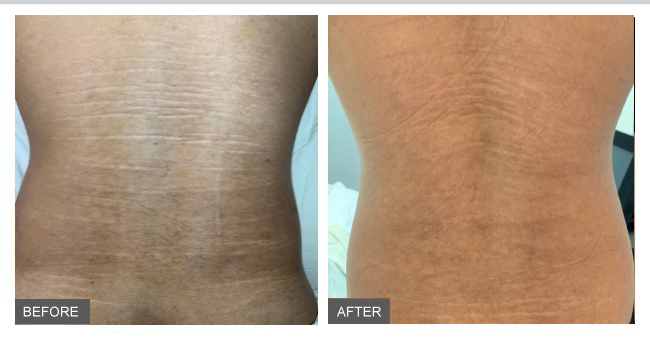 microneedling for stretch marks results
