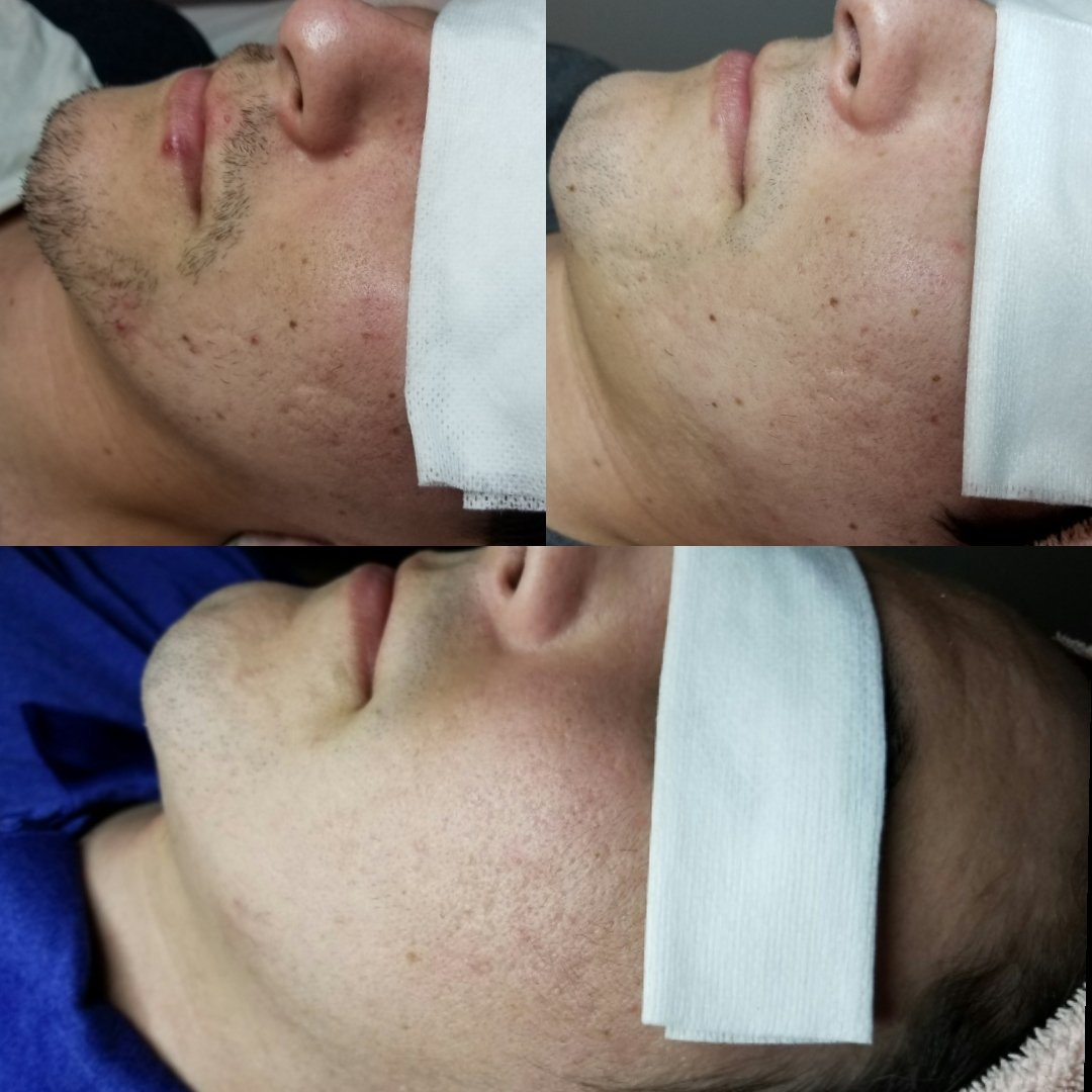 Microneedling for Acne...